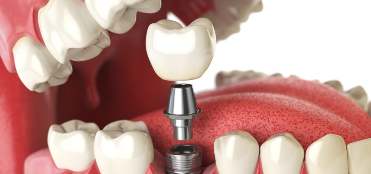 News Implantologia Studio Dentistico Pasini Steffan Celant Rosso