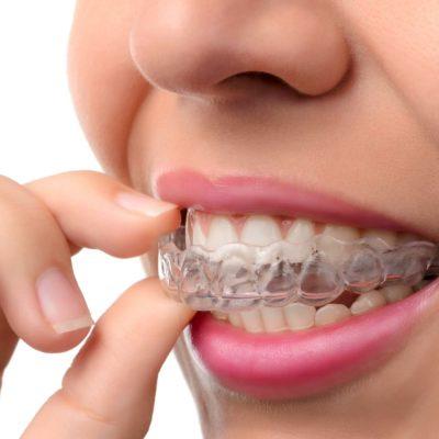 Trattamento dello Studio Dentistico Pasini Steffan Celant Rosso